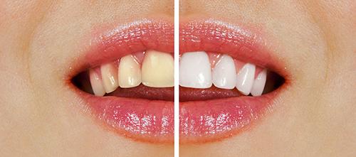 wybielanie zębów przed i po zabiegu