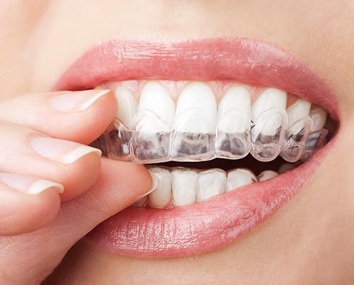wybielanie zębów nakładkami
