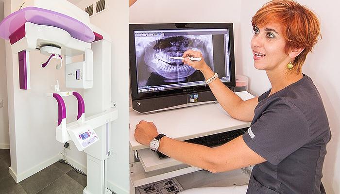 pantomograf implanty warszawa